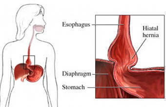 hernia left side under ribs